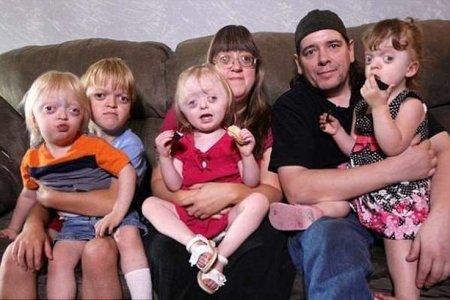 Фото - Семья с редкой генетической аномалией подверглась жестокой атаке «троллей»